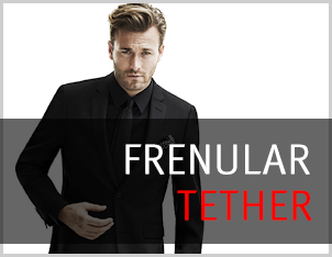 Frenuloplasty - Frenular Tether